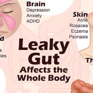 What Does a Leaky Gut Look Like?